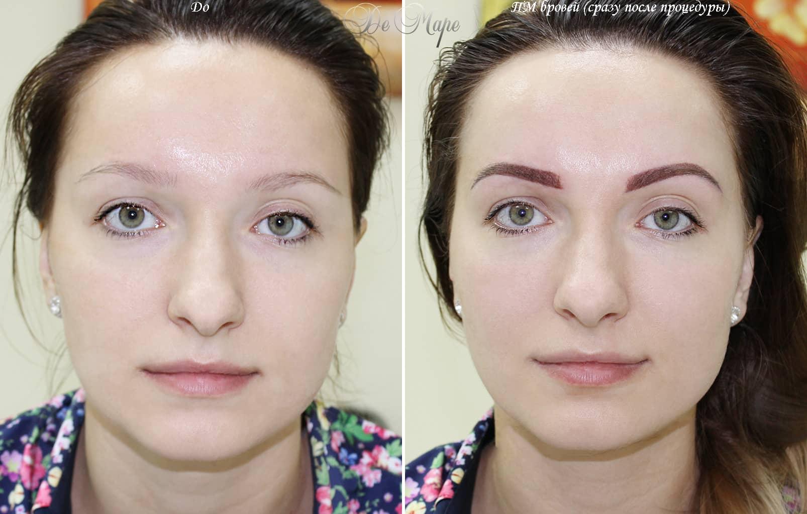 обследования перманентный татуаж фото до и после любого
