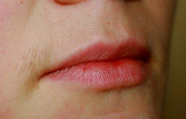 Как избавиться от усов?
