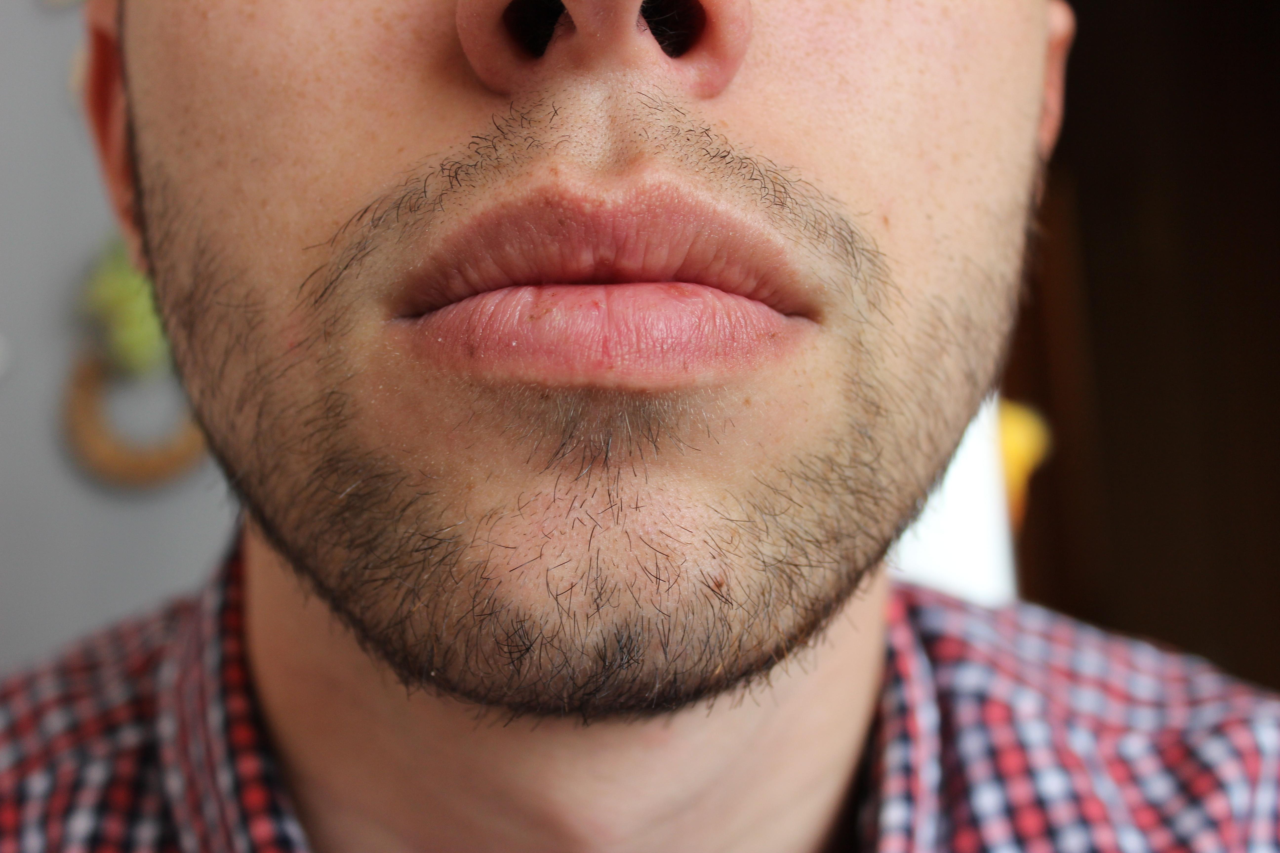 Во сколько лет начинает расти борода?