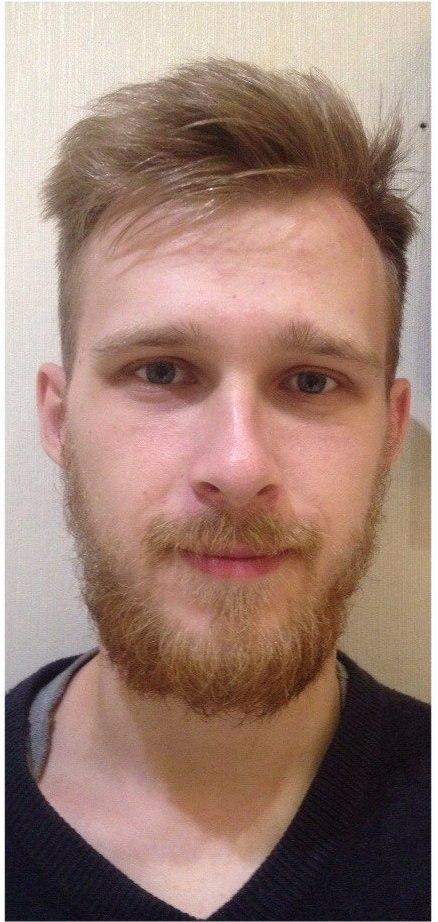 растущая борода
