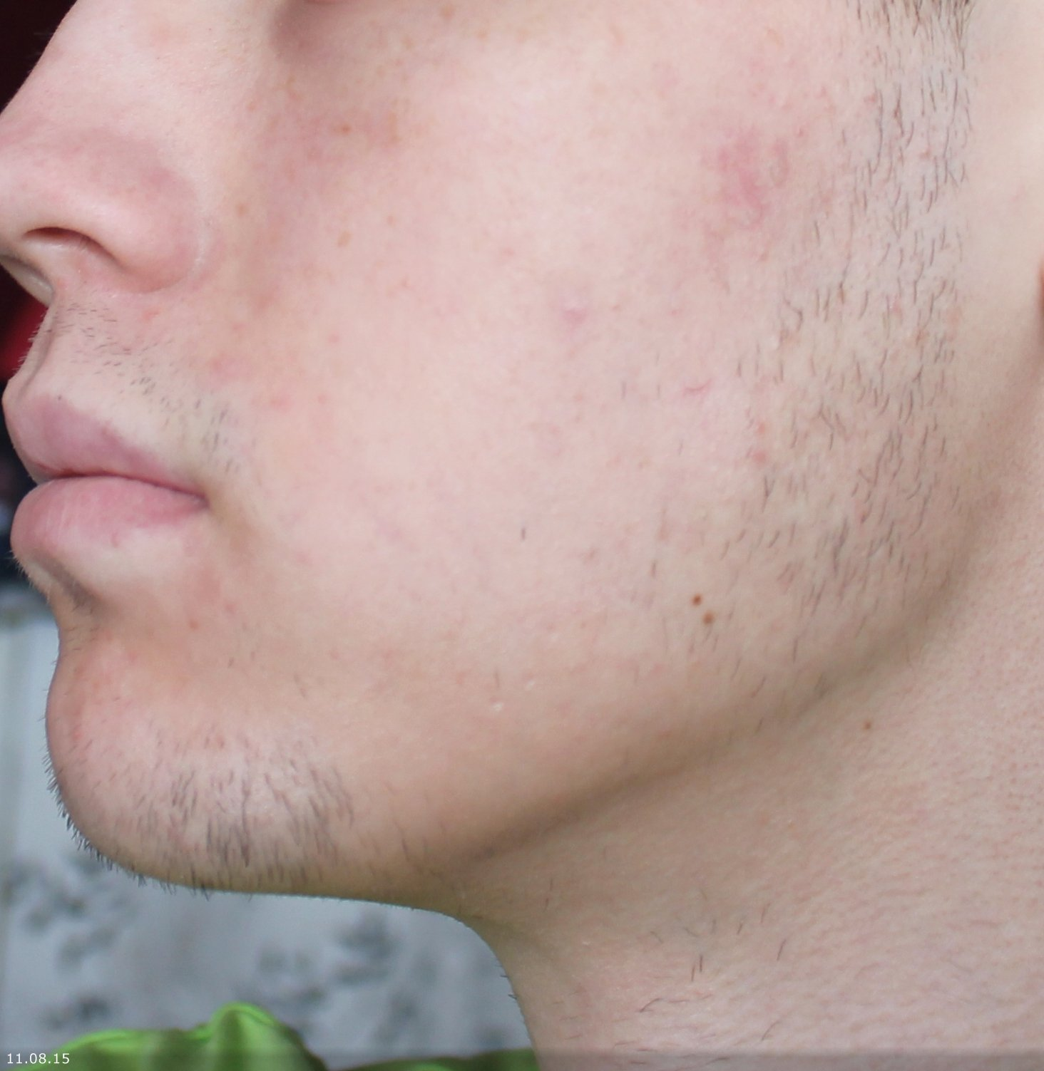 Во сколько лет можно брить усы мальчикам?