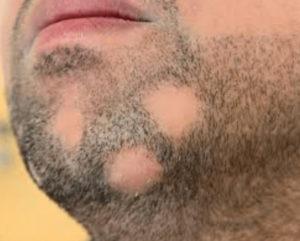 борода с проплешинами