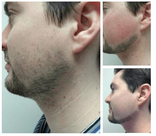 Шугаринг бороды у мужчин