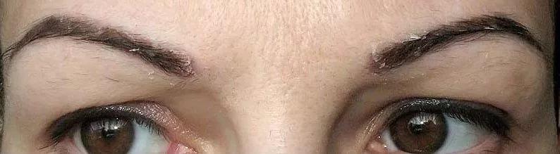 Что делать, если шелушатся брови?