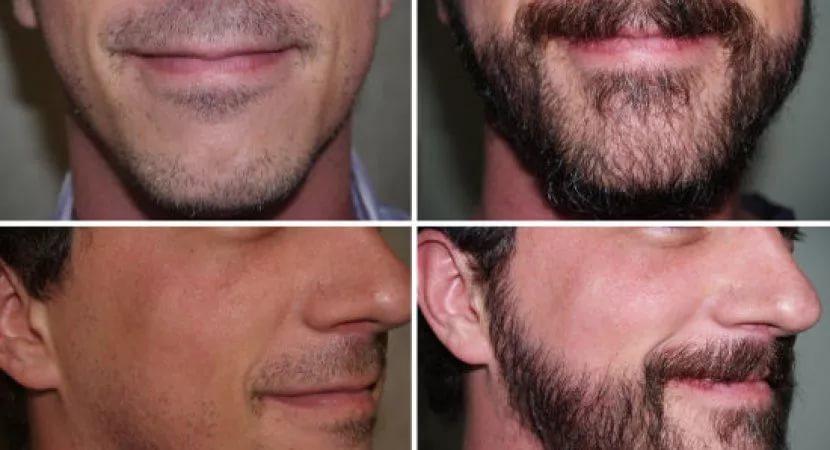 Современные методы пересадки волос на бороду