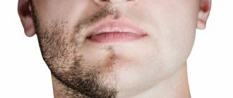 шугаринг бороды