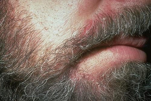 микоз бороды