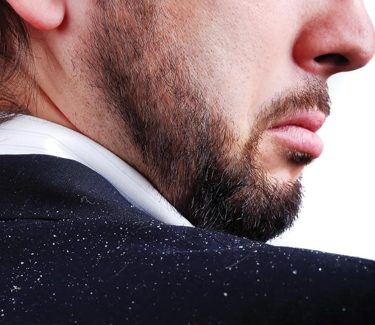 шелушение бороды
