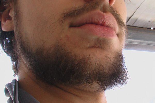 Редкая борода - в чем причины и как с ними справиться?