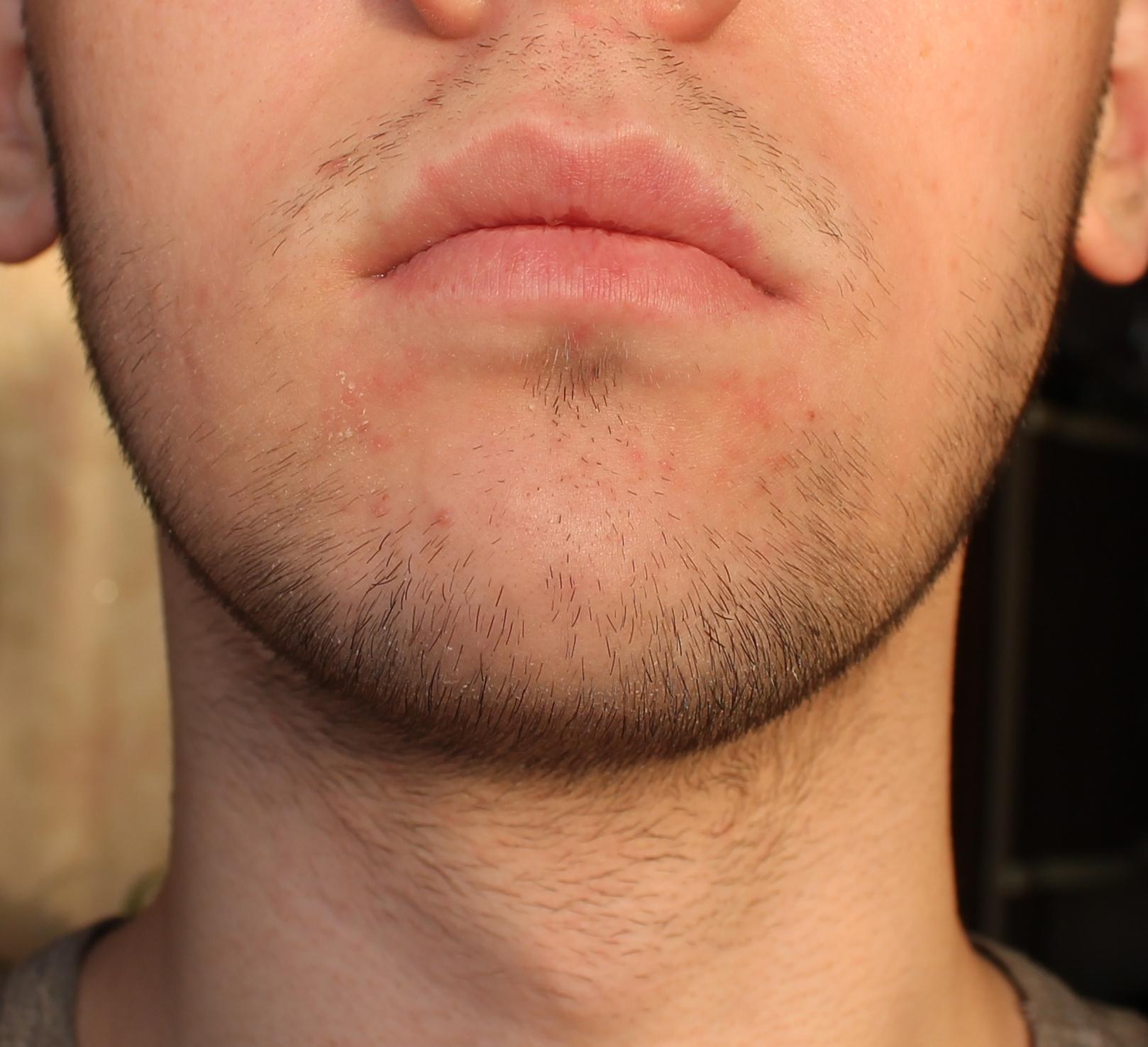 Как отрастить бороду в 17 лет?