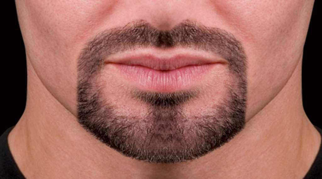 Есть ли таблетки для роста бороды