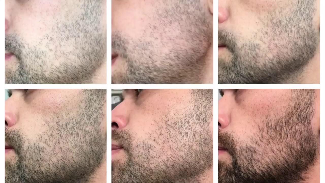 Миноксидил, как применять для бороды?