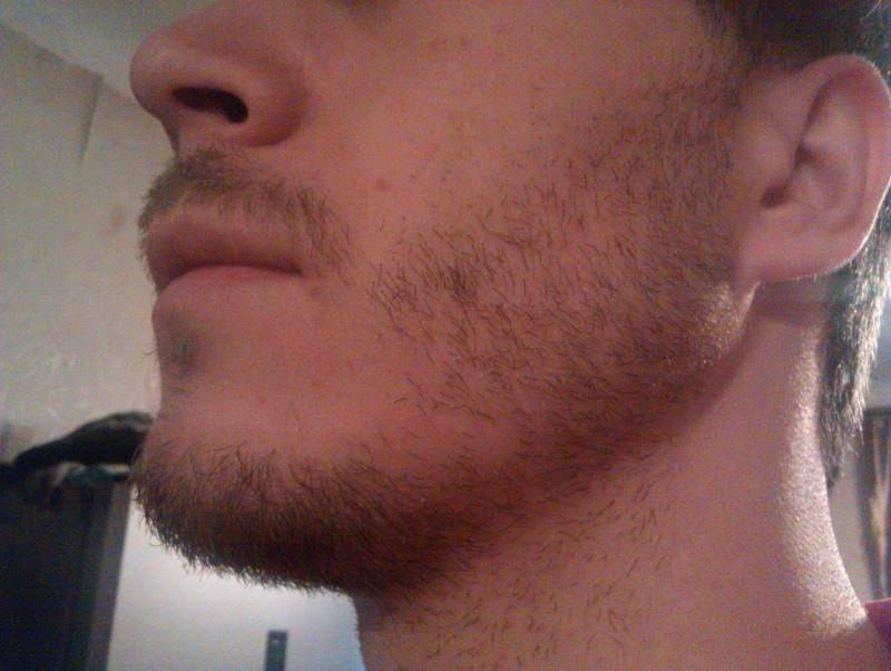 редкая борода