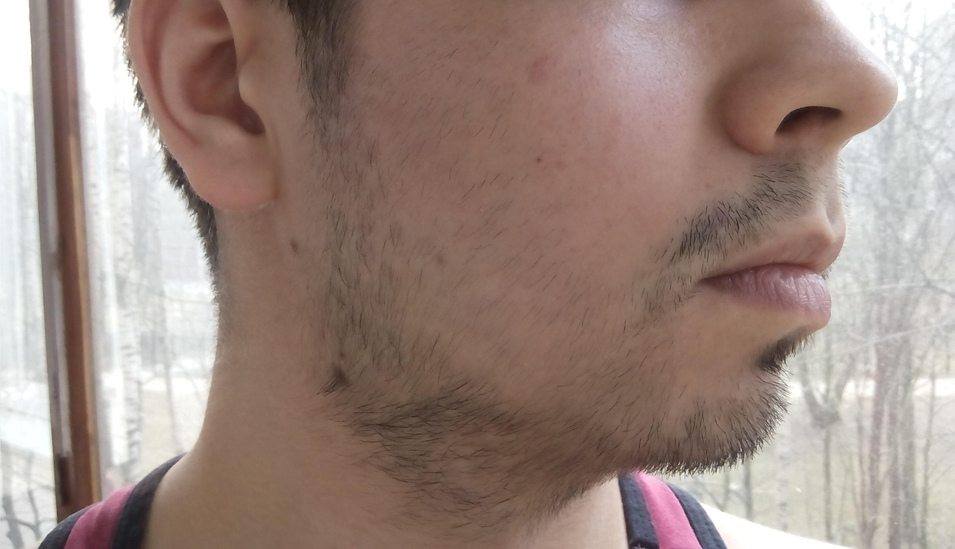 универсальны подходят пух на щеках фото была составлена