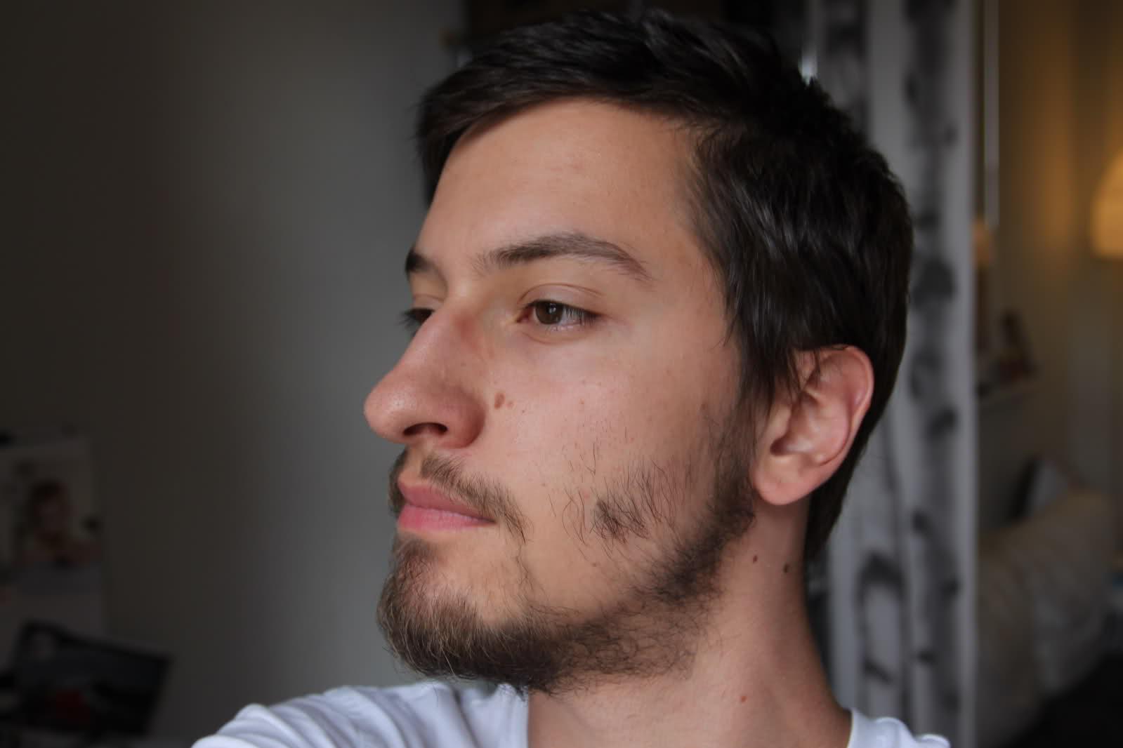 не растет борода на щеках