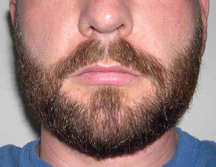 Пересадили волосы на бороду