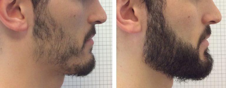 пересадка бороды и усов