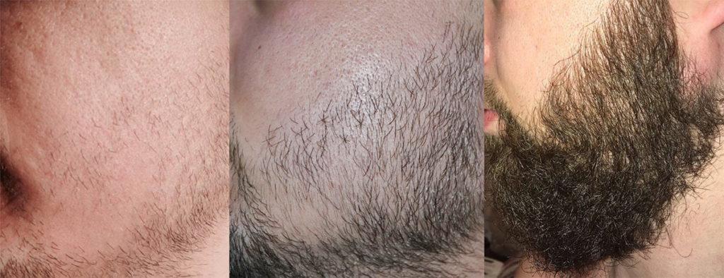 Генеролон для бороды