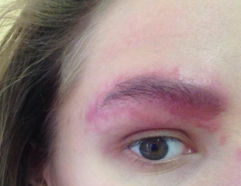 Аллергия на хну для бровей