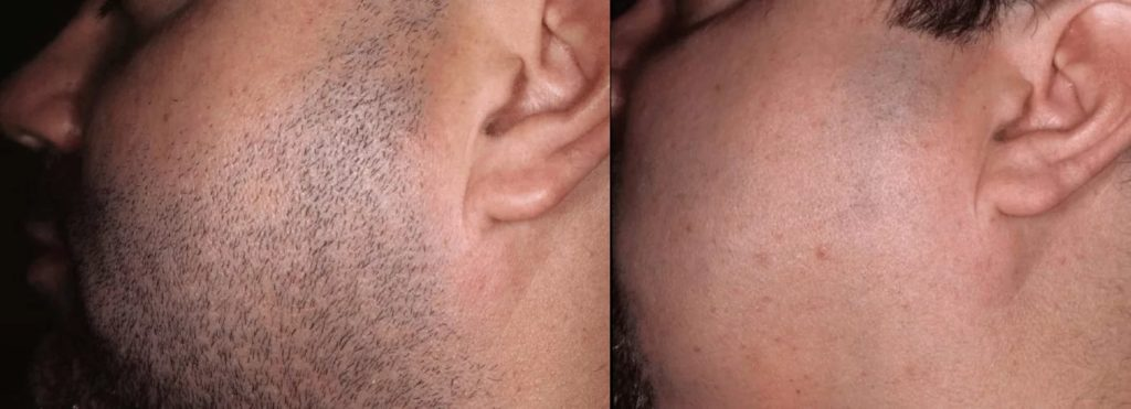 Фотоэпиляция бороды у мужчин