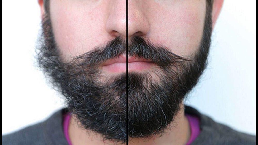 Выпрямление бороды