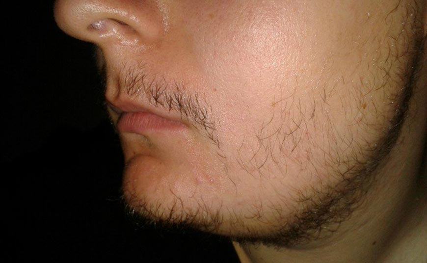 плохо растет борода