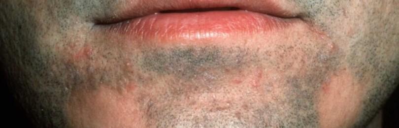 раздражение на бороде у мужчин