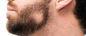 Плешь на бороде