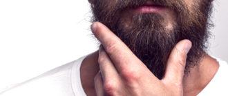 Перхоть в бороде