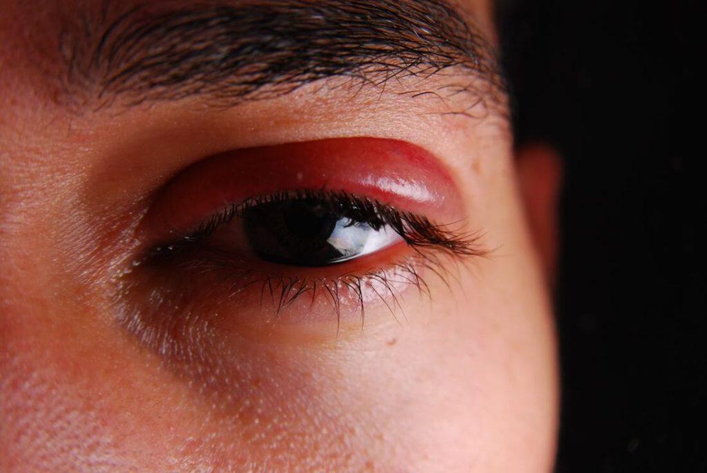 травма глаза покраснение