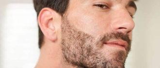 Линия бороды