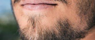 Не растет под нижней губой борода