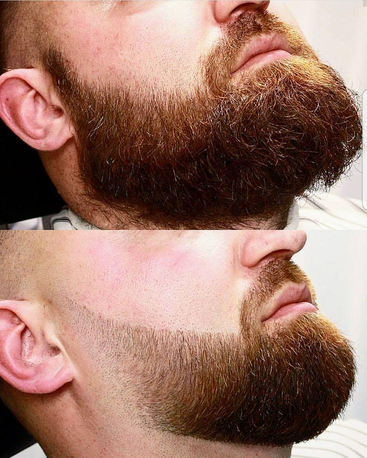 шугаринг бороды у мужчин воском