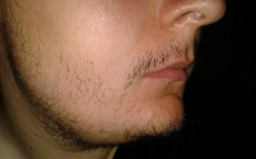 Борода пухом