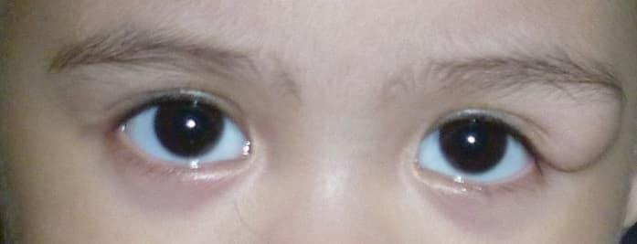 Дермоидная киста на брови у ребенка