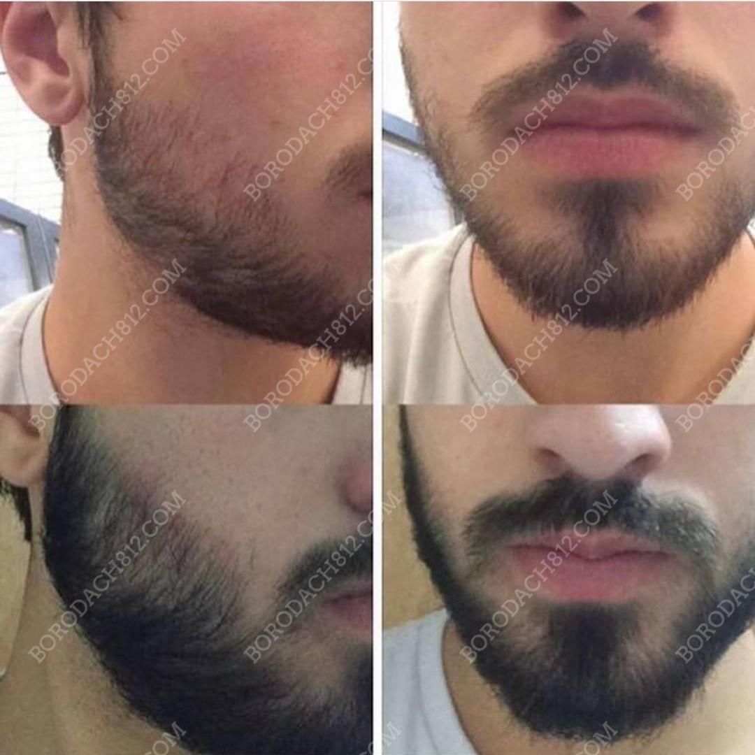Комплексное применение миноксидил и его аналогов для роста волос