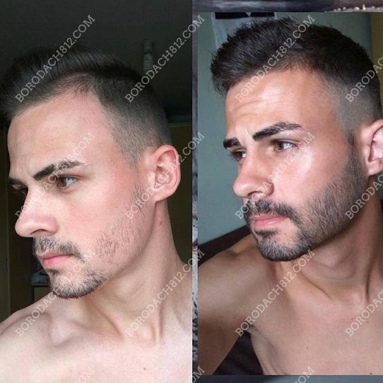 миноксидил до и после