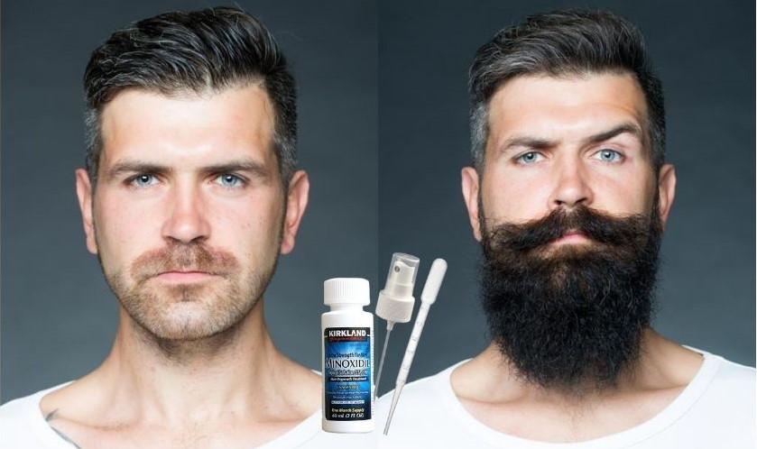 minoxidil 5 для роста бороды