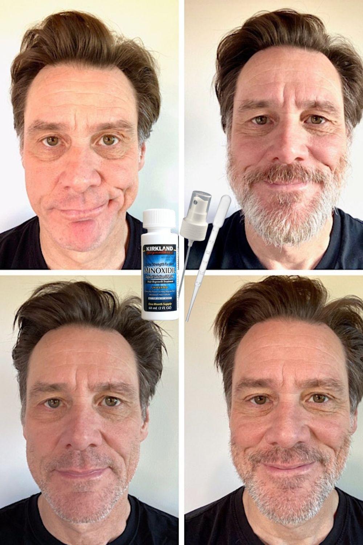 постепенный рост бороды
