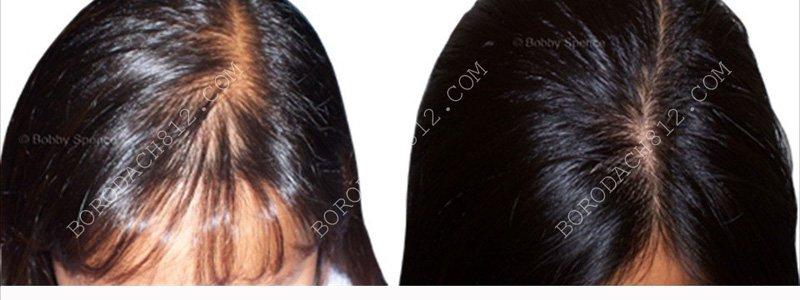 волосы девушки до и после миноксидила
